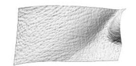 hifu dualsonic cambios arrugas nasolabiales antes del tratamiento